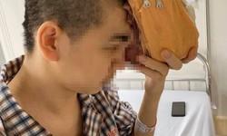 Phẫu thuật thành công khối u khổng lồ xâm lấn vùng trán và mắt trái