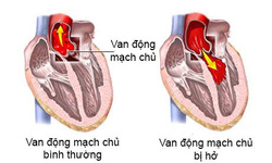 Hở động mạch chủ có nguy hiểm?