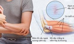 Nhận biết bệnh viêm gân