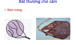 Nguy cơ dây rốn bám màng có ảnh hưởng đến thai nhi