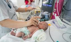 Trẻ mắc dị tật tim bẩm sinh cần lưu ý để tránh nhiễm khuẩn