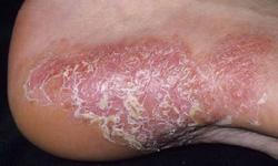 5 lời khuyên giúp kiểm soát bệnh vẩy nến ở chân