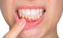Cảnh báo: Những bệnh tật liên quan đến răng nướu