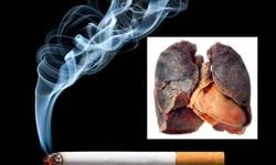 Nguy cơ ung thư phổi từ bệnh COPD