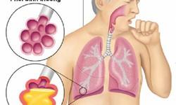 Nấm phổi do Aspergillus: Bệnh nguy hiểm nhưng ít người biết
