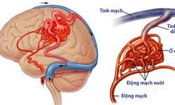 Dị dạng mạch não biểu hiện thế nào?