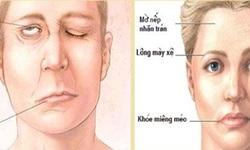 Xoa bóp - bấm huyệt trị phục hồi liệt mặt ngoại biên