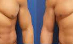 Nâng ngực ở nam giới - nhu cầu hay trào lưu?