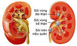 Các vị thuốc có tác dụng hỗ trợ điều trị đau lưng