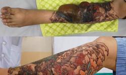 Một phụ nữ bỏng nặng vì xoá xăm, bác sĩ cảnh báo dễ mắc bệnh truyền nhiễm khi xăm