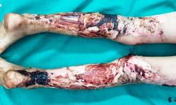 Kinh hoàng bé trai đắp lá chữa bỏng khiến hoại tử hai chân