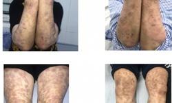 Hà Nội: Người phụ nữ mắc phong thể nhiều vi khuẩn giống Lupus ban đỏ
