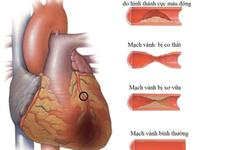 3 nguyên nhân gây thiếu máu cơ tim không phải ai cũng biết