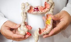 Ngăn chặn hiểm họa ung thư từ bệnh tiêu hóa