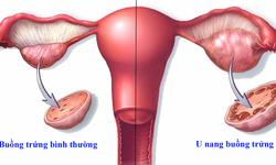 Bệnh u nang buồng trứng và giải pháp cải thiện hiệu quả từ thảo dược