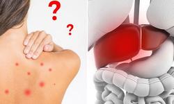 """Mẩn ngứa, mụn nhọt do gan suy giảm chức năng: Bệnh dễ """"tác quái"""" vào mùa nắng nóng"""