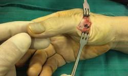 Kỹ thuật mới giúp chấn thương khớp bàn tay do chơi thể thao phục hồi nhanh