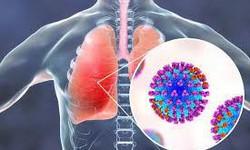 Bệnh nấm phổi có nguy hiểm?