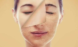 Biện pháp dễ thực hiện giúp làm chậm lão hóa da
