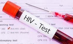 HIV có thể lan truyền từ não bộ