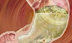 Thuốc mới trị liệt dạ dày do đái tháo đường: Những lưu ý quan trọng khi sử dụng