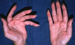 Đại dịch COVID-19: Lo âu làm gia tăng tái phát bệnh đa xơ cứng