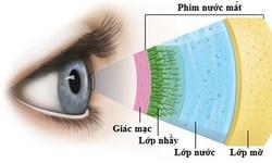Thuốc mới điều trị bệnh khô mắt