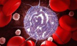 Liệu pháp mới trị bệnh bạch cầu tế bào tóc