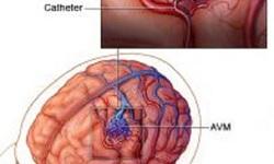 Động kinh suốt 5 năm, đi khám bất ngờ phát hiện dị dạng mạch não