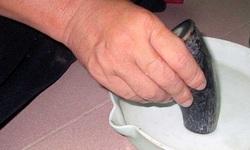 Uống bột mài từ sừng tê giác, em bé 22 tháng tuổi bị ngộ độc xanh tím toàn thân
