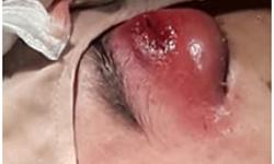 Sốc: Bé trai 14 tuổi nhiễm vi khuẩn hầu họng gây hoại tử hốc mắt, áp xe trong hộp sọ