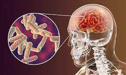 WHO: Đánh bại viêm màng não - Phát triển vaccine và tăng cường chẩn đoán sớm và điều trị