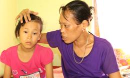 3 số phận hẩm hiu và nỗi đau bệnh tật của hai mẹ con cùng bị thiểu năng trí tuệ
