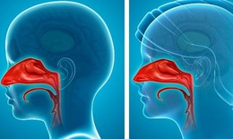 Các bệnh do viêm đường hô hấp trên: Dấu hiệu, điều trị và phòng ngừa