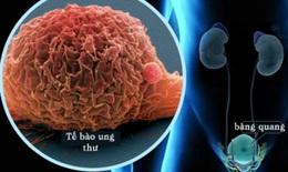 Chuyên gia chỉ rõ việc bệnh nhân ung thư tiết niệu cần làm trong dịch COVID-19
