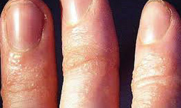 Bọng nước ở tay tái phát, có phải bệnh chàm tổ đỉa?