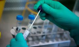 Bộ Y tế: Các địa phương xét nghiệm sàng lọc, định kỳ COVID-19 từ 20-50% người lao động ở khu công nghiệp