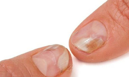 Nấm móng tay có thuốc nào để trị?