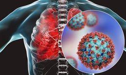 Vaccine COVID-19 có thể bảo vệ phổi của bệnh nhân