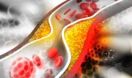 Thuốc hạ lipid máu có thể giúp cắt giảm thời gian điều trị bệnh nhân COVID-19 nặng
