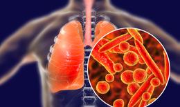 7 món ăn - thuốc tốt cho người bệnh lao phổi
