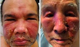 Phát ban trên mặt sau tiêm vaccine phòng COVID-19 có đáng ngại?