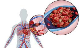 Thuốc ngăn ngừa tổn thương hô hấp và tim mạch ở bệnh nhân COVID-19
