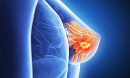 Thuốc Statin hạ mỡ máu giúp tăng thời gian sống ở bệnh nhân ung thư vú