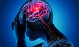 Nhận biết và đề phòng đau đầu migraine tái phát