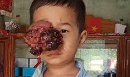 Xót xa em bé dân tộc bị khối u đẩy lồi mắt ra ngoài, nguy cơ nhiễm trùng cao