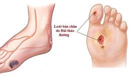 Dùng thuốc trị nhiễm trùng bàn chân đái tháo đường