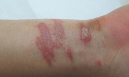 Nhận diện và xử trí đúng cách viêm da do kiến ba khoang