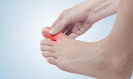 Nam giới mắc bệnh gout ngày càng nhiều, vì một lý do tưởng đơn giản