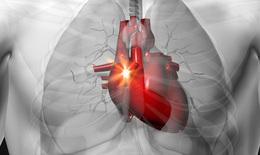 Thuốc chống kết tập tiểu cầu, liệu pháp điều trị suy tim mới